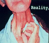 Dohányzás következményei